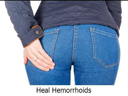 Heal Hemorrhoids