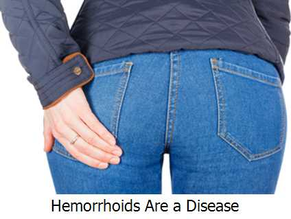 Hemorrhoids Are a Disease