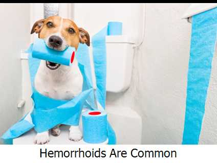 Hemorrhoids Are Common