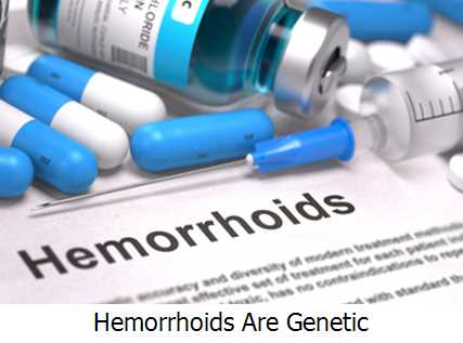 Hemorrhoids Are Genetic