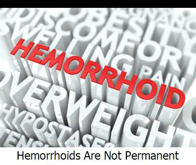 Hemorrhoids Are Not Permanent