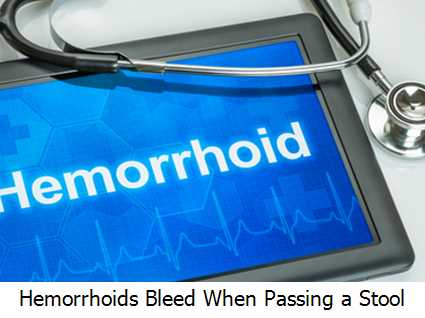Hemorrhoids Bleed When Passing a Stool