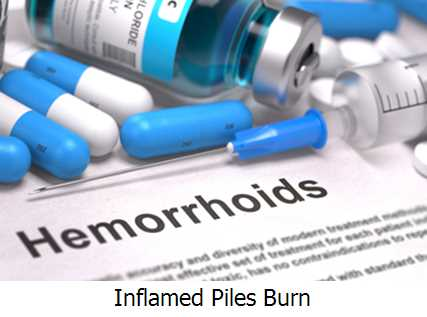 Inflamed Piles Burn