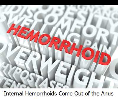 Internal Hemorrhoids Come Out of the Anus
