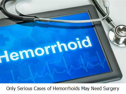 Only Serious Cases of Hemorrhoids May Need Surgery