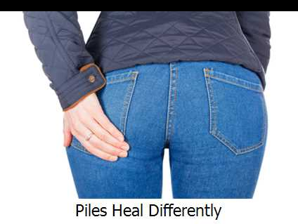 Piles Heal Differently