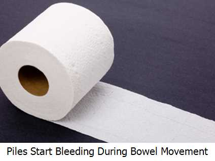 Piles Start Bleeding During Bowel Movement